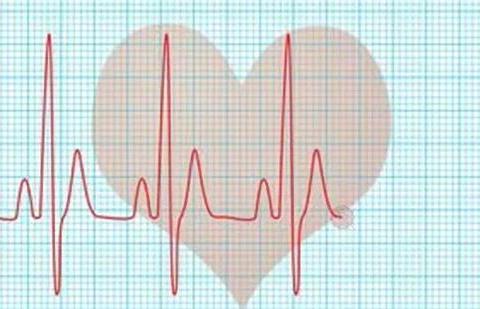高血压患者,心率应控制在多少较合适?