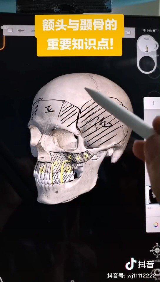额头和颞骨的重要知识点! 两者之间靠颞线区分……