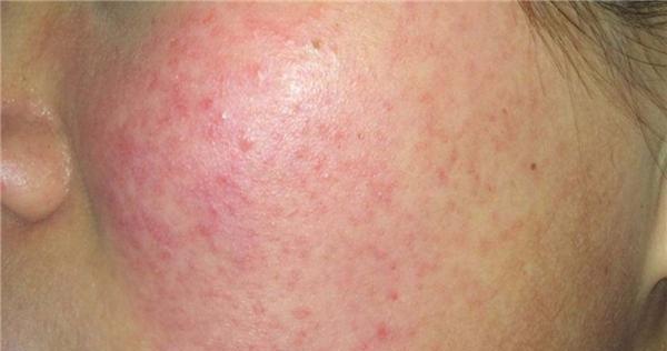 数数烟酰胺对皮肤的坏处,这锅到底谁来背?