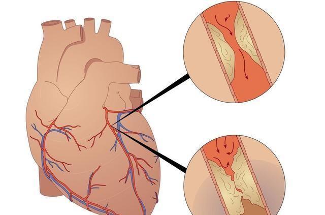 从动脉硬化到急性心梗,在这3个阶段,积极行动起来都不晚