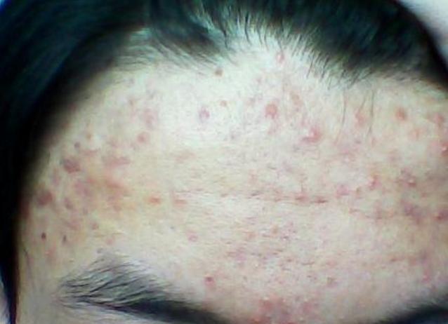 """夏季皮肤频频出现问题,做好日常护理,防止皮肤""""螨虫""""侵犯"""