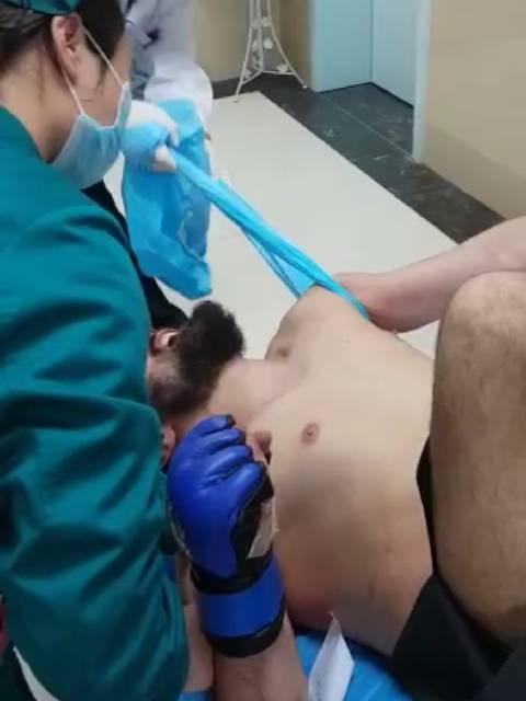 国外男子胳膊脱臼复位过程,真是够疼的!