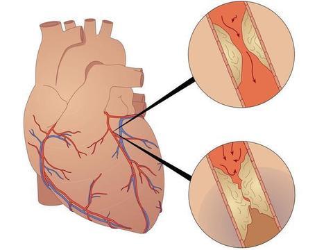 动脉硬化斑块不想发展成大问题,这3个阶段,积极行动起来都不晚