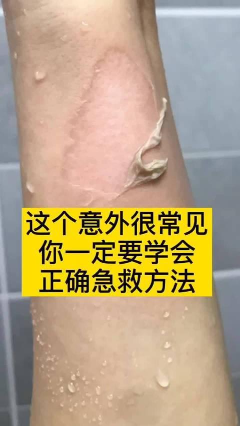 烫伤最难恢复治愈。 附上全面清理治疗烫伤伤口视频,转需留存