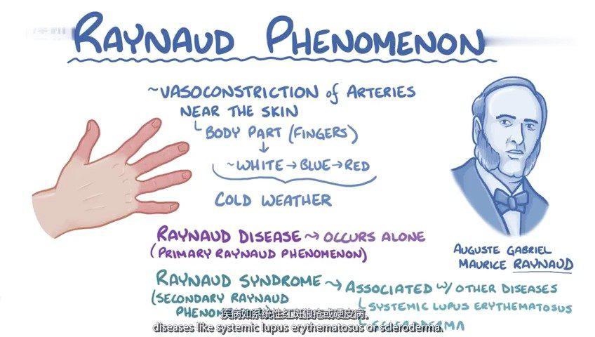 雷诺氏病:病因、症状、诊断治疗学 雷诺综合征是由于寒冷或情绪