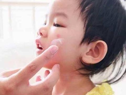 """宝宝容易被蚊子咬,是因为血液更甜吗?蚊子的""""选择标准""""是这样"""