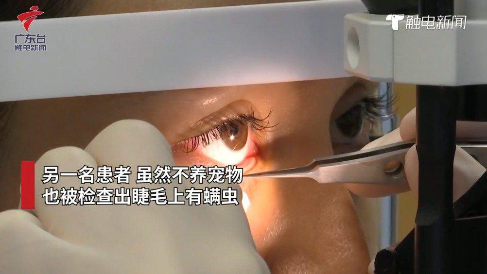 广州一女子睫毛里发现17条螨虫 眼睛干涩发痒……