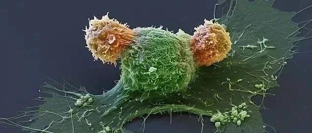 如何提高CAR-T细胞疗效及安全性,攻克实体瘤?美加州大学研究人员详细解答   论文研读