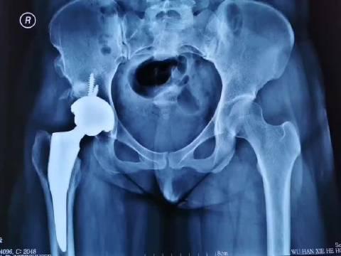 髋臼发育不良全髋关节置换术后两月复查