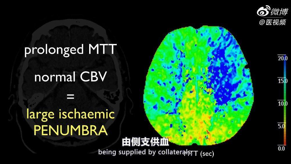 医学双语课程:放射科病例系列——缺血性中风的血管内治疗