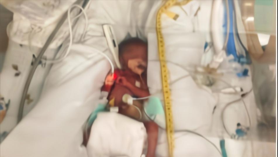 广州体重仅465克早产儿奇迹存活!经连续116天救治出院
