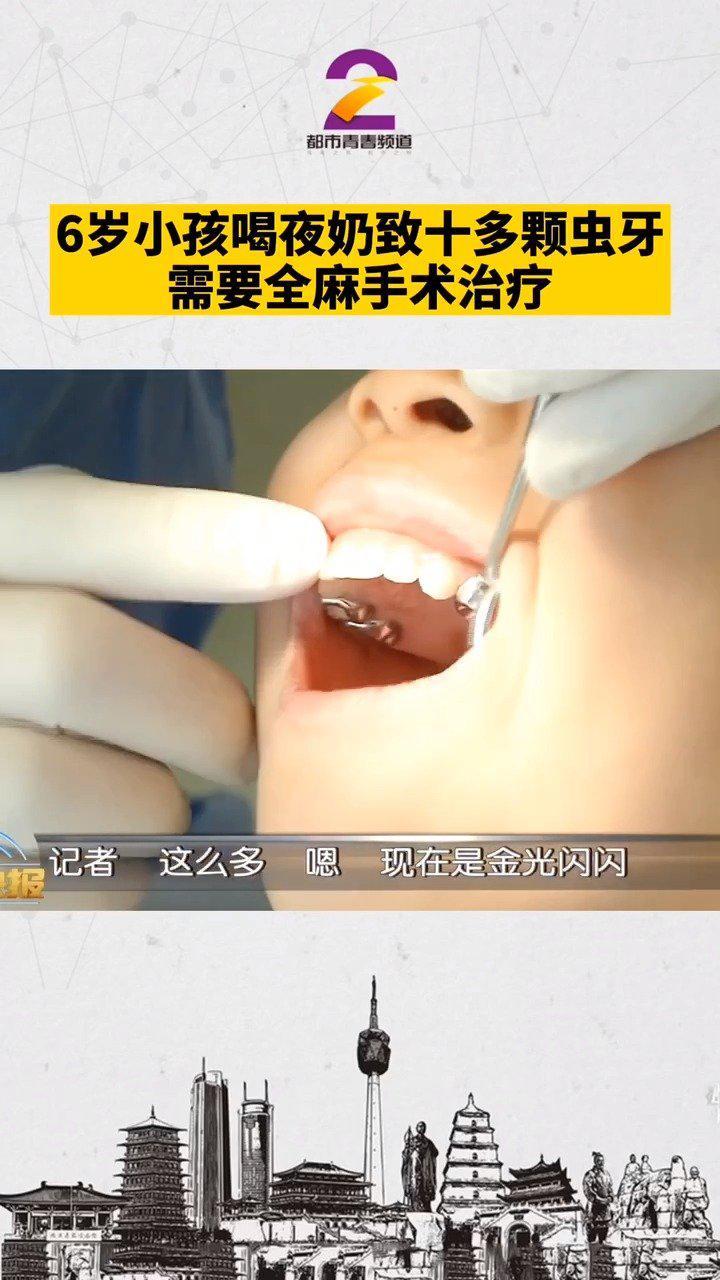西安6岁女童喝夜奶致十多颗虫牙 需全麻手术治疗