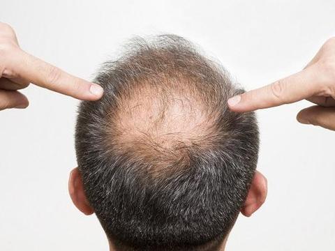 头发很油还脱发怎么办 中药治好了我的脂溢性脱发