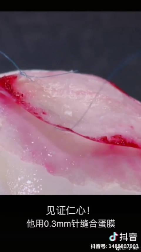 用鸡蛋内膜演示缝合手术 脑外专家厉害了!