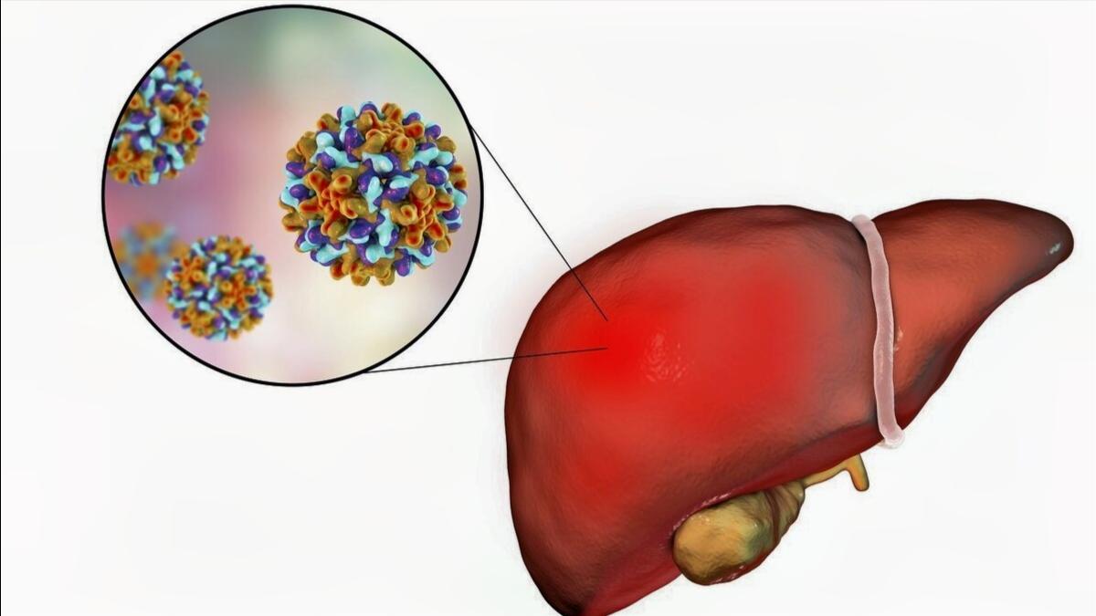 藏茵陈胶囊可疏肝利胆、退黄,用于治疗乙肝效果如何?听药师讲解