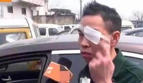 帝豪车速25码,没有碰撞气囊却弹出,导致车主左眼失明