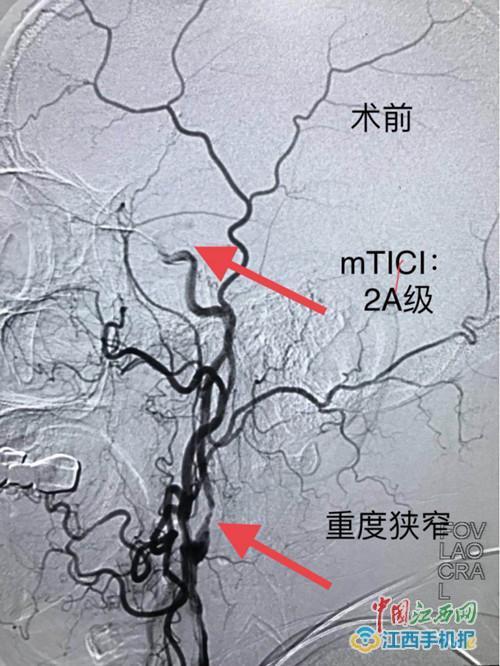 抚州六院为脑梗死患者行左颈内动脉支架成形术(图)