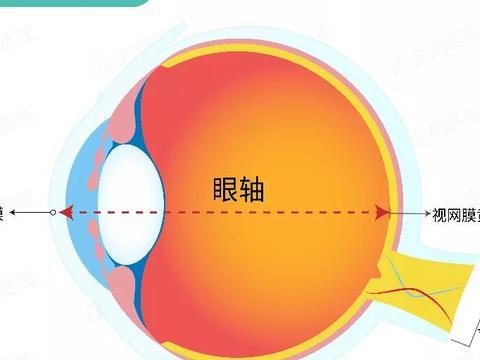 同样的眼轴长度,为什么有的人近视了,有的人却没有