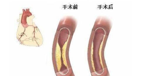 冠状动脉球囊扩张手术和冠状动脉球囊扩张成形术一样吗?