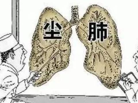 看间质性肺那个医院好姚宏胤