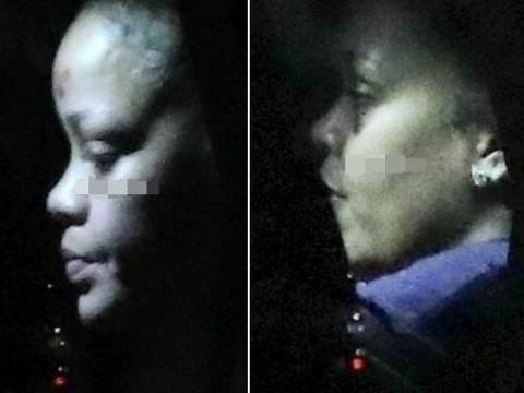 32岁蕾哈娜意外受伤,脸部肿胀眼眶瘀青,发言人称是玩滑板车摔伤