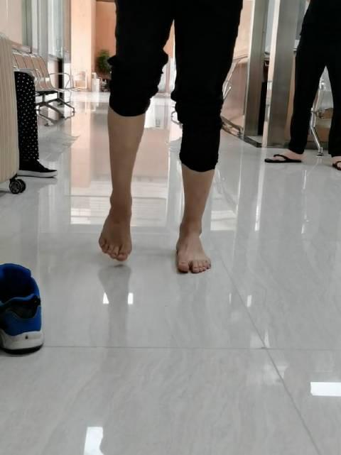 单腿肌张力增高,足跟无法落地,慢慢的,也短了一些