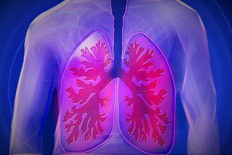 肺间质性疾病 要早发现早治疗