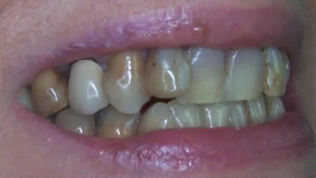 拯救一口不好看的牙齿,烤瓷牙换全瓷牙,四环素牙做美容修复!
