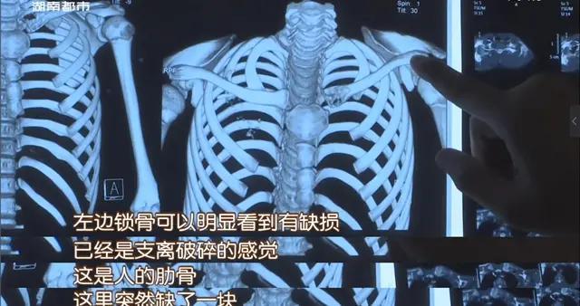 12岁男孩锁骨处长肿块,一查竟是癌症晚期