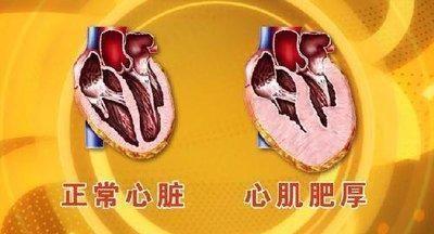 如何确诊一个疑似心肌梗死的病人?