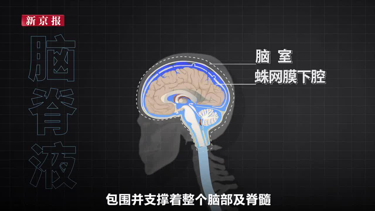 低头族当心脑脊液外漏 长时间低头易形成脊柱骨刺后果严重