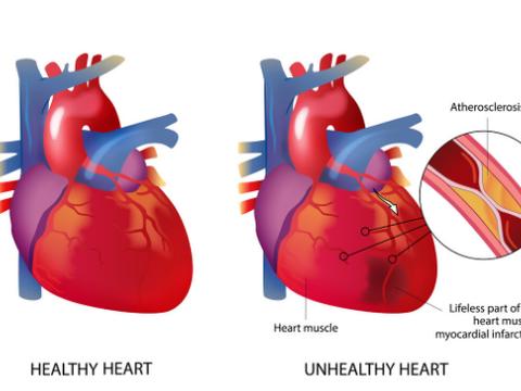 发现动脉硬化斑块,还能逆转吗?医生提醒:这不是控制重点
