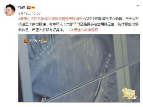 三十岁的杨迪五十岁的眼睛,被查出眼睛睑板腺消失