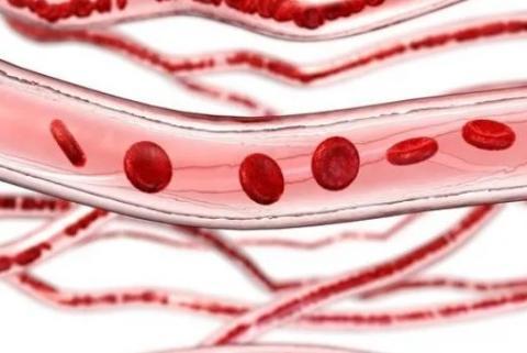 """血管已""""衰老"""",脸上露出3个""""破绽"""",若你全有,最好检查血脂"""