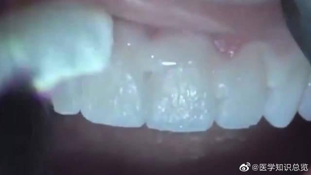 你还在好奇医生是怎么操作的吗?全瓷牙就是这样做好的