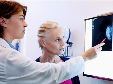 全球医报道:乳腺癌发病四个因素!预防可降低乳腺癌的发病率!