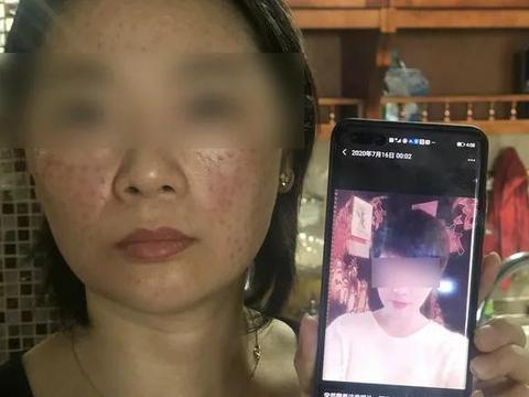 遭遇非法行医毁容女子维权,3个月后她却突然成了被告