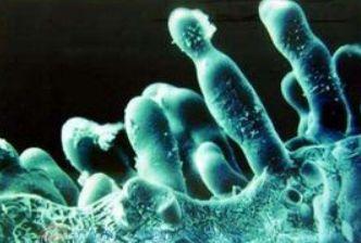 什么是真菌病害?什么是细菌病害?不懂这个你的钱就白花了