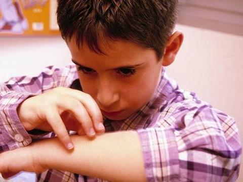 防止季节性荨麻疹转化为慢性荨麻疹,你需要做到这五点