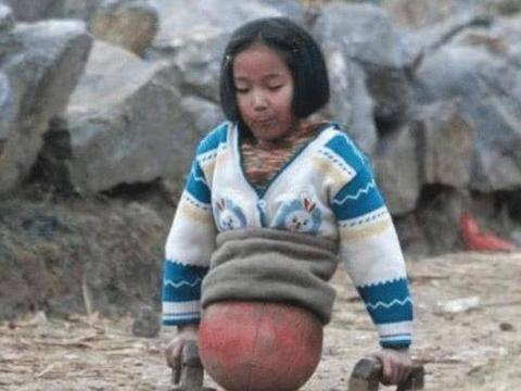 """还记得""""篮球女孩""""吗?被迫截肢双腿,成为泳坛女神"""