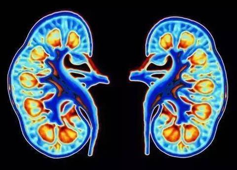 34岁男子,突发肾衰入院,尿酸高达820,与妻子脱不了干系