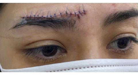 阿娇受伤后首晒自拍照,伤口触目惊心,坦言留疤感叹遮瑕膏的发明