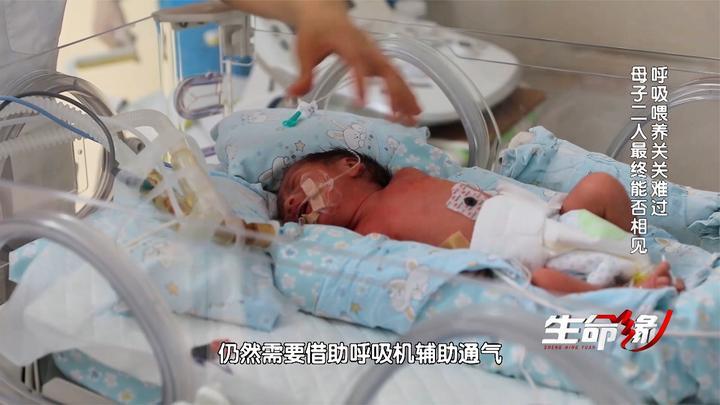 出生第一天宝宝肺水肿严重,呼吸喂养关关难过,母亲拔管成功醒来
