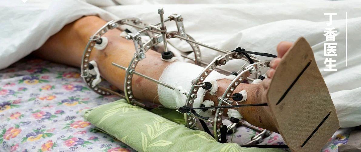 被中国明文禁止的「断骨增高术」:技术没有善恶,但人有