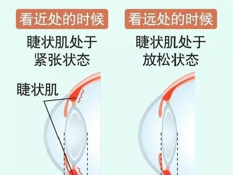 小儿推拿李波:孩子近视常见原因,家长需做好预防保护和视力保健