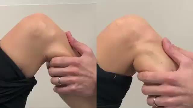 膝关节交叉韧带的检查