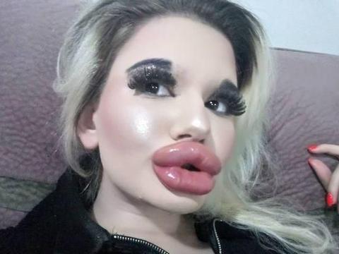 保加利亚女子第21次丰唇,超大腊肠嘴快碰到鼻子
