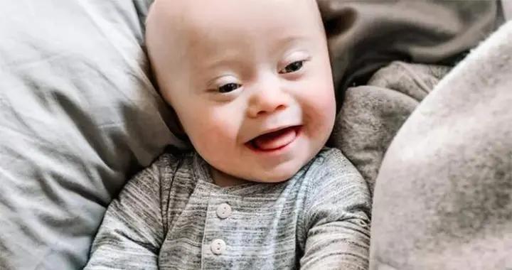 唐氏综合症宝宝,产前检查没发现,要告医院,有哪些经验可借鉴?