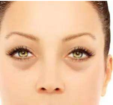 怎么区分眼袋和卧蚕?