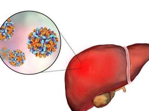 放屁多是身体在排毒吗?提醒:可能是肝脏变硬的信号,别大意